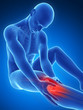 3d rendered illustration of pain in the knee