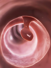 3d rendered illustration of a colon polyp