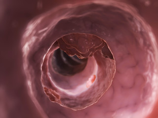 3d rendered illustration of a colon tumor