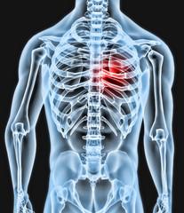 Radiografia parte cuerpo