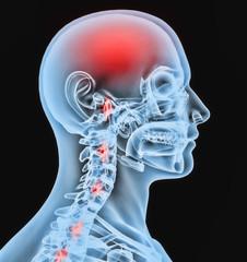Radiografia cabeza
