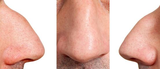 Aquiline nose