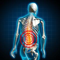 human back pain rückenschmerzen