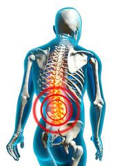 human back pain rückenschmerzen freisteller