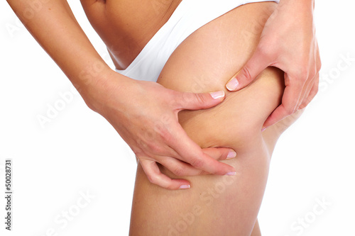 Woman having a cellulite.