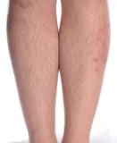 Skin Disease on the Leg