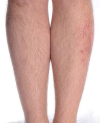 Skin Disease on the Leg