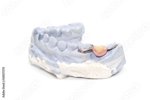 Dental prosthesis on gypsum model plaster