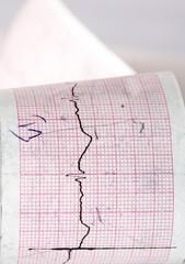 Electrocardiogram CTG