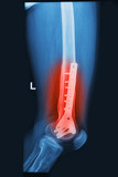 X- Rays image broken knee joint with plate and screw