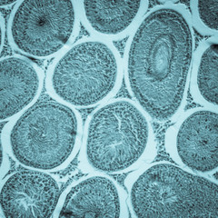 egg cell oocyte in ovary tissue
