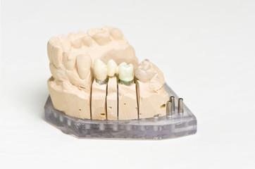 Zahnersatz - Implantatbrücke