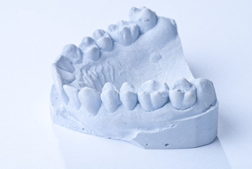 dentales Gipsmodell