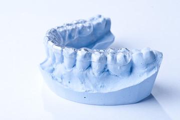 dentales Gipsmodell (Retainer)