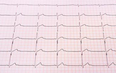 Heart rhythm chart
