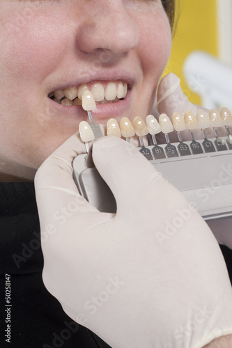 dentist choose white of teeth