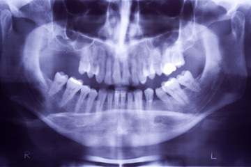 Buccal x-ray