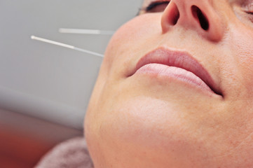 acupuncture close up cheek