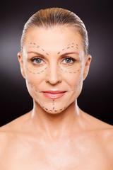 senior woman before plastic surgery