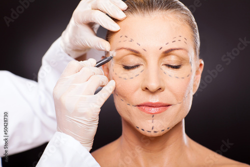 middle aged woman preparing for plastic surgery