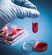 blood test - medical diagnostic laboratory