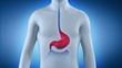 Heartburn - pyrosis