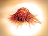 cancer cell / tumor   poster