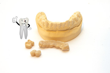stampo dentiera