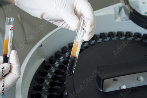 Woman loading samples in analyzer