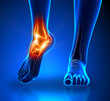 Ankle pain - detail - 50652751