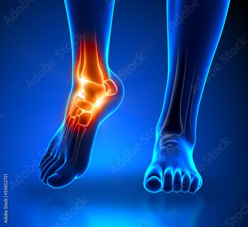 Leinwandbild Motiv Ankle pain - detail