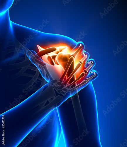 Shoulder pain - detail