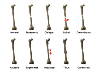 All Types of Bone Fractures