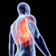 Herz Lungen Komplex