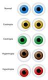 Eye Disorders poster