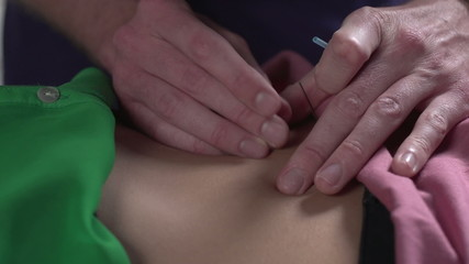 Close up of Acupuncture performed on a woman's back