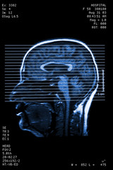 Head resonance