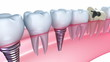 Dental implants in the gum