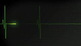 Normal heartbeat pulse monitored on a hospital EKG