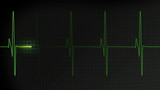 Fast heartbeat pulse monitored on a hospital EKG