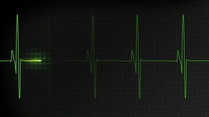Fast heartbeat pulse monitored on a hospital EKG