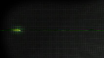 No heartbeat or pulse monitored on a hospital EKG