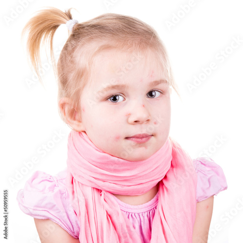 Sick little girl with chickenpox