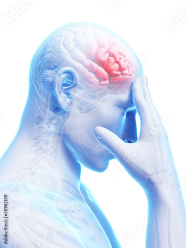 3d rendered conceptual illustration of head pain