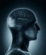 Occipital lobe medical x-ray scan
