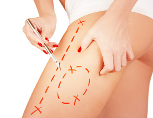 Cellulite removal preparation markings