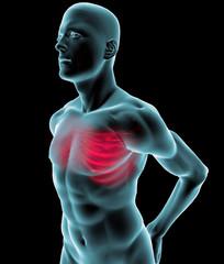 Uomo raggi x gabbia toracica dolore