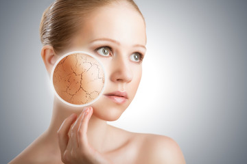 concept of cosmetic skin care.  face of young woman with dry ski