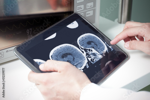doctor examining a brain cat scan on a digital tablet
