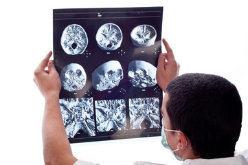 doctor looking at CT computer tomography scan image